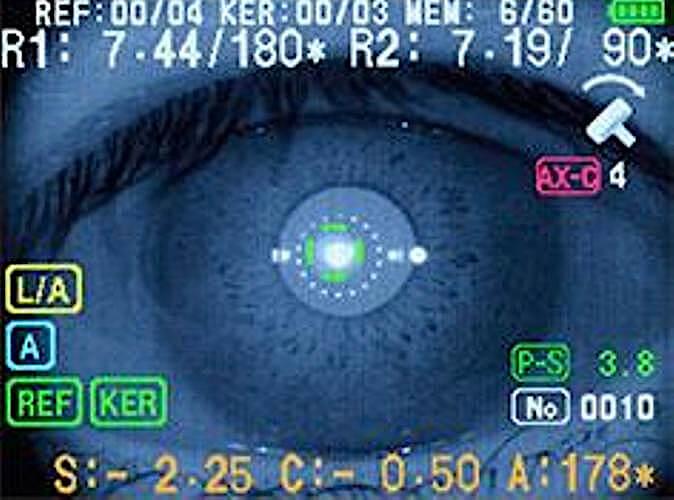 Autorefraktometr Righton Retinomax Screeen ekran