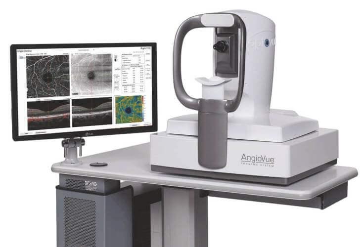 SOCT optovue angiovue