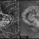 SOCT optovue angiovue angioflow