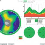 SOCT optovue iscan badanie