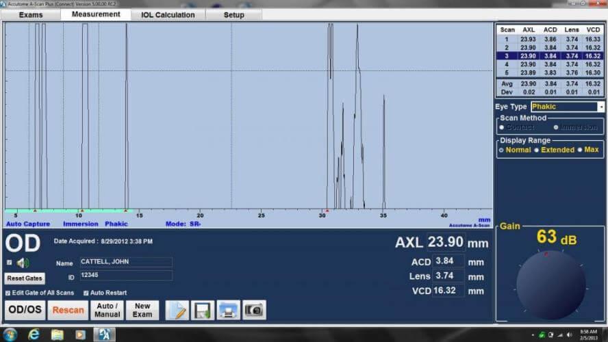 Ultrasonograf keeler A-Scan Plus badanie