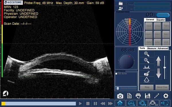 Ultrasonograf keller accutome 4sight badanie